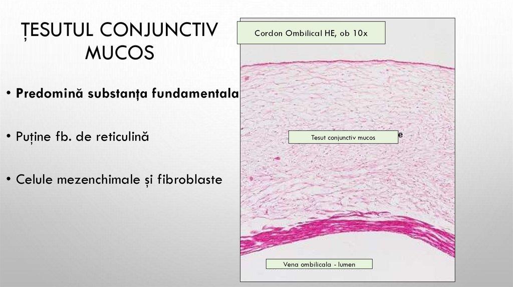 cartilaj dens de țesut conjunctiv