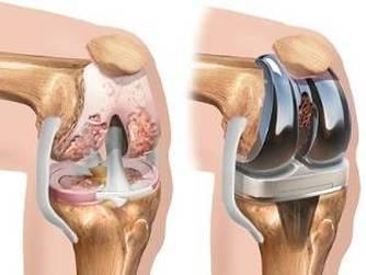 tratarea creta a articulațiilor genunchiului