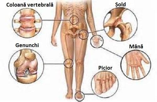 dureri articulare de la picioare