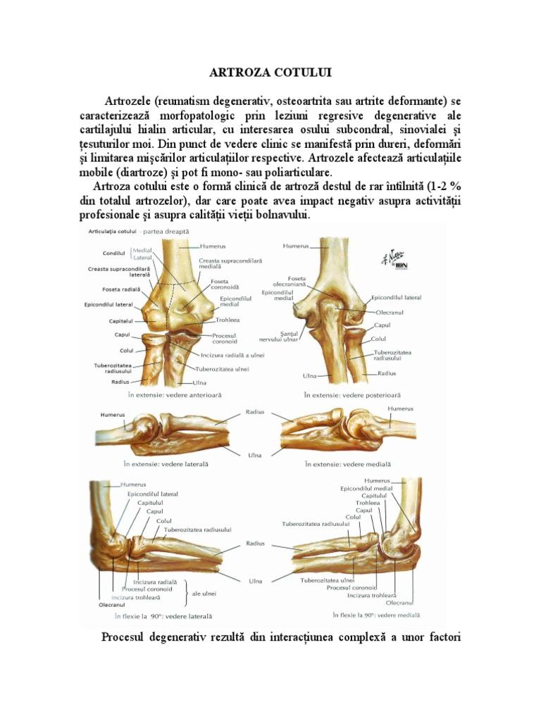 tratament articular menisc
