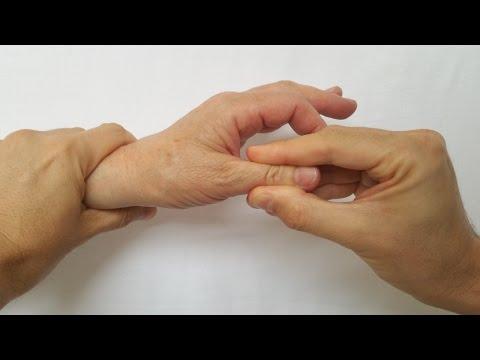 volatilitatea durerii și inflamației articulațiilor mari)