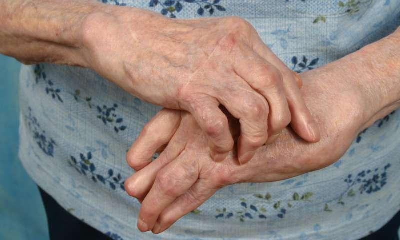 care este diferența dintre artrita și artroza articulațiilor)