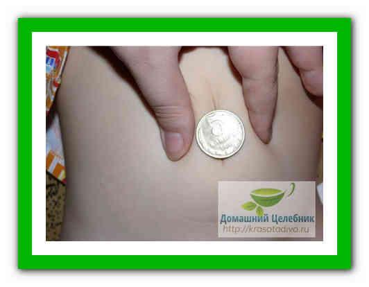 tratarea articulațiilor cu plăci de cupru
