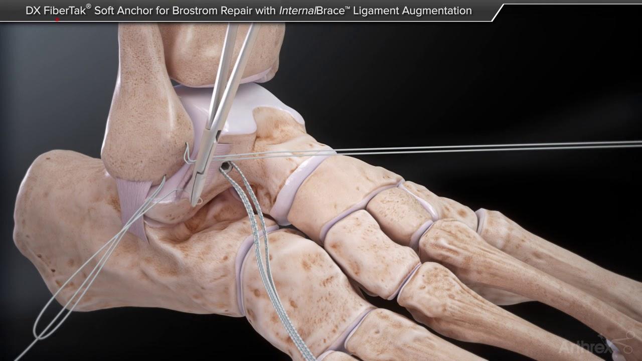 deteriorarea restaurării ligamentelor gleznei