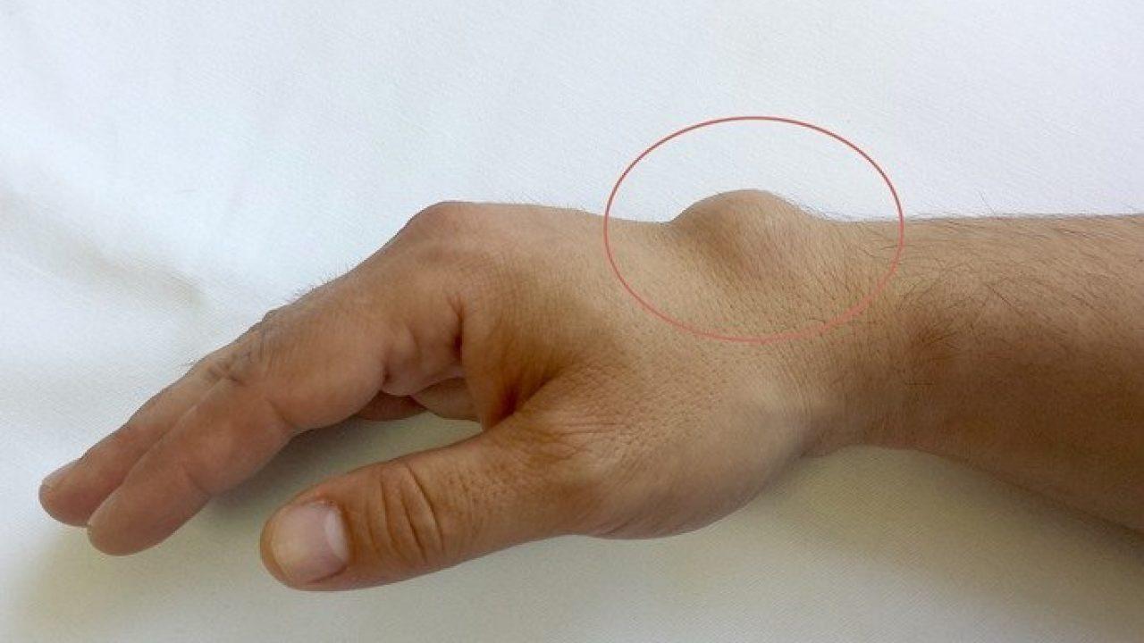 articulațiile de la îndoirea mâinii doare