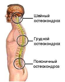 Osteocondroza cervicala: simptome si tratament Unguente și creme pentru osteocondroza cervicală