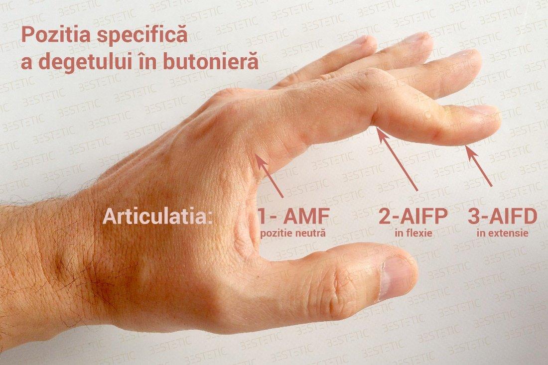 cauzele durerii în articulațiile piciorului