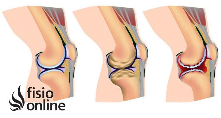 dureri de artroplastie articulară)