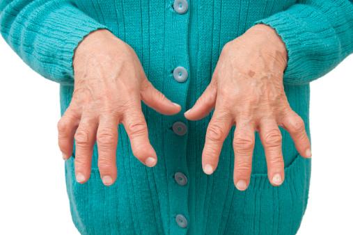Scleroza subcondrale a genunchiului înainte și 1 lingura