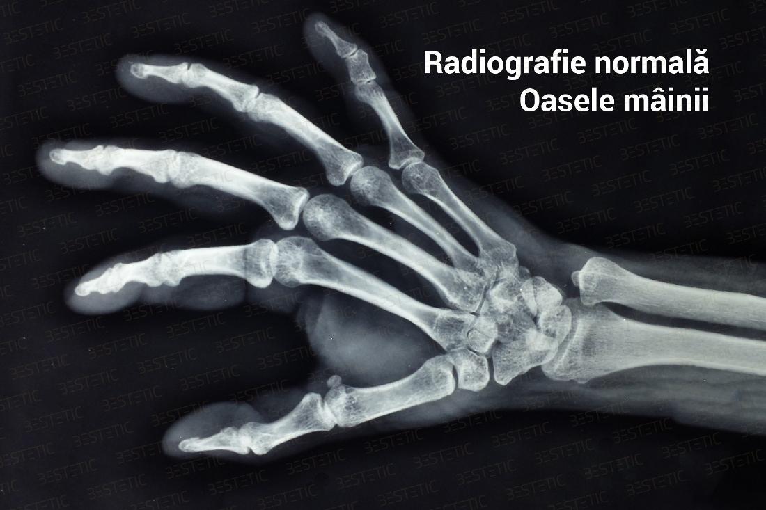 artrita artroza pe maini