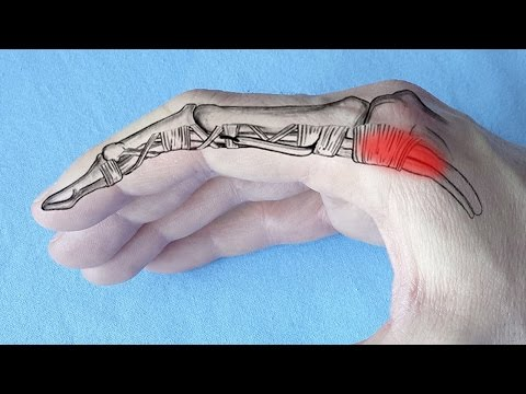 ameliorați inflamația în articulația degetului)