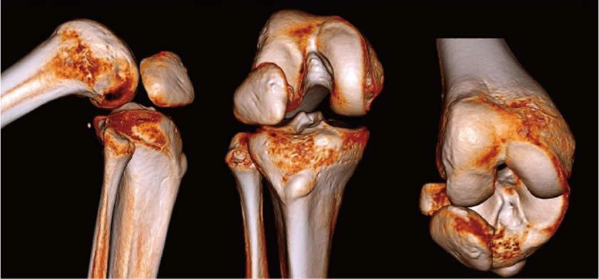 recuperarea dislocării articulare)