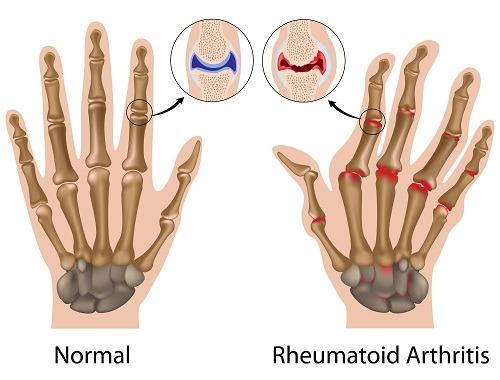 cauze ale inflamației gleznei cauza durerii articulare degetul mare