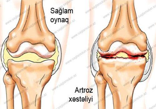 dureri articulare după fracturi deformarea artrozei piciorului ce tratament