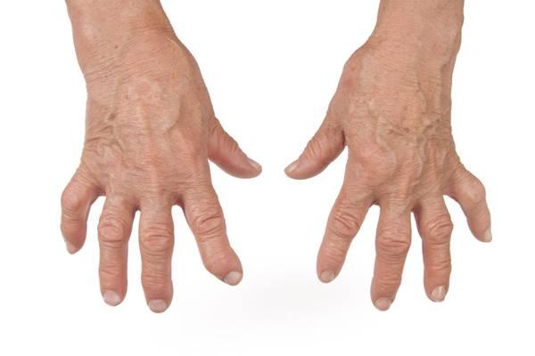articulațiile umflate ale mâinii)