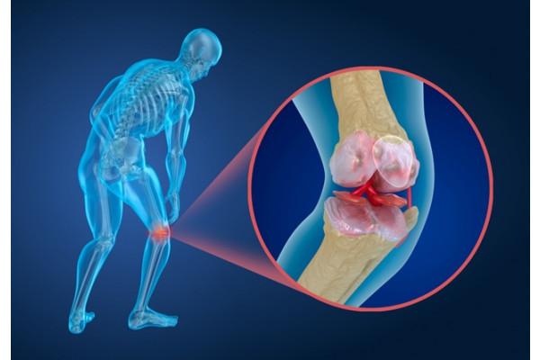 articulațiile genunchiului care se vindecă