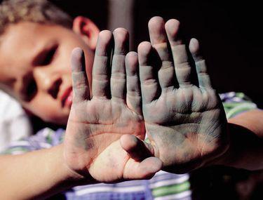 boli ale mâinilor)