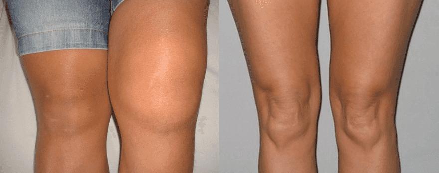 dureri articulare cu boala tiroidă artrita genunchiului în 10 ani