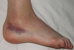 pansament pentru deteriorarea ligamentelor articulației gleznei