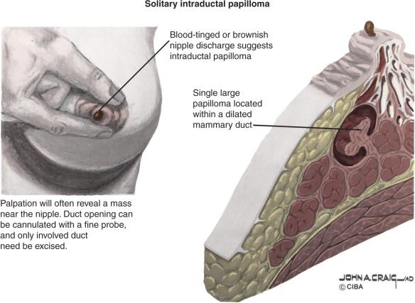 and.a. tratamentul articulațiilor chernyshev