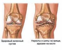 tratament cu magneți pentru durerile articulare deteriorarea degenerativă a meniscului intern al articulației genunchiului