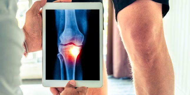entorsă în tratamentul articulației genunchiului)