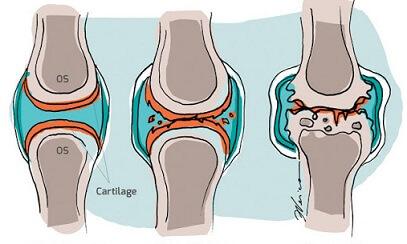 înroșirea durerilor articulare