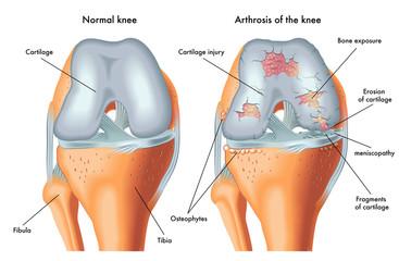 artroza simptomelor articulațiilor mici)