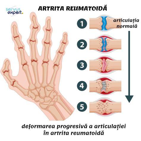 decoctul inflamației articulare
