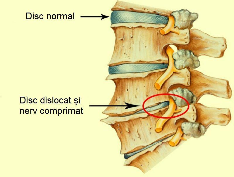 durere în articulațiile gâtului coloanei vertebrale)