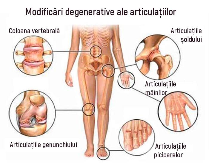 Sănătatea articulațiilor cu GLC - High Energy