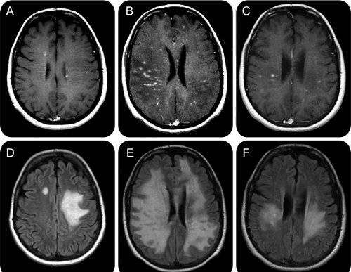 Scleroza multipla: cauze, simptome si tratament