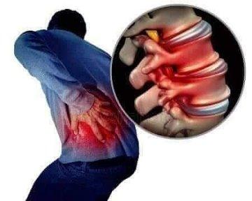 tratamentul artrozei ivanov