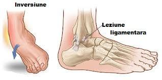 refacerea articulației gleznei după ruperea ligamentelor