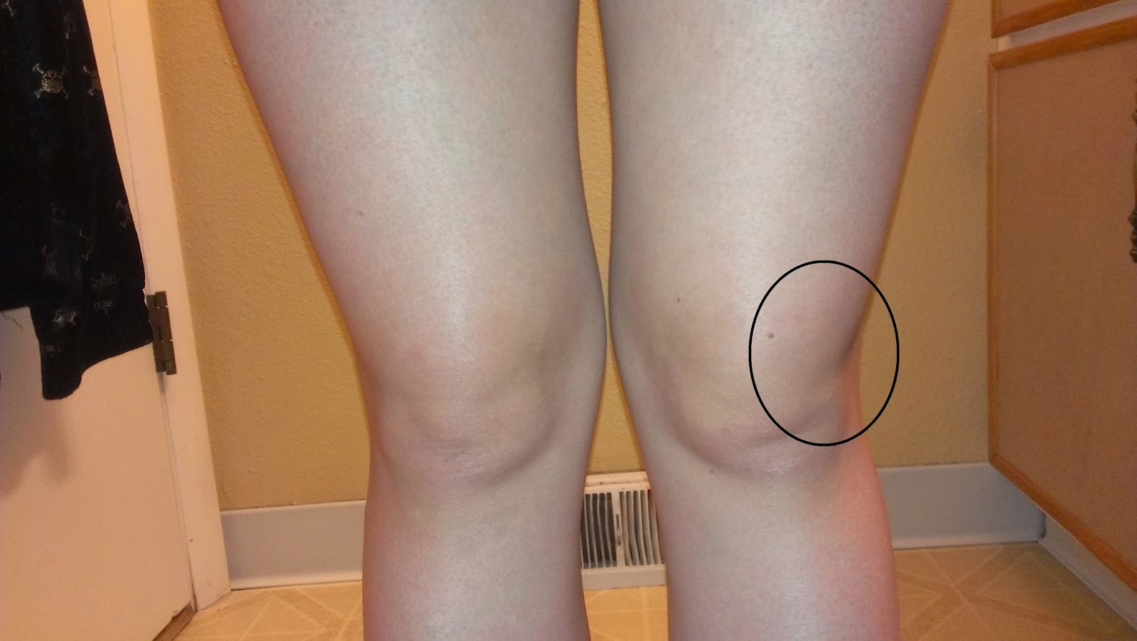 lichid în genunchi după accidentare