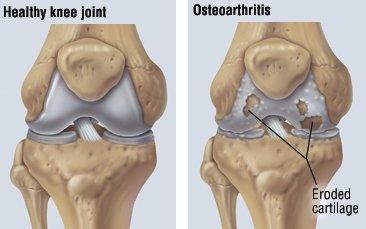 cum să tratezi osteoartrita genunchiului)