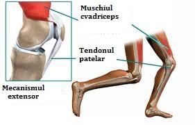Chondromalacia rotulei. Caracteristicile manifestării condromalaciei rotuliene. Sportivi cu risc