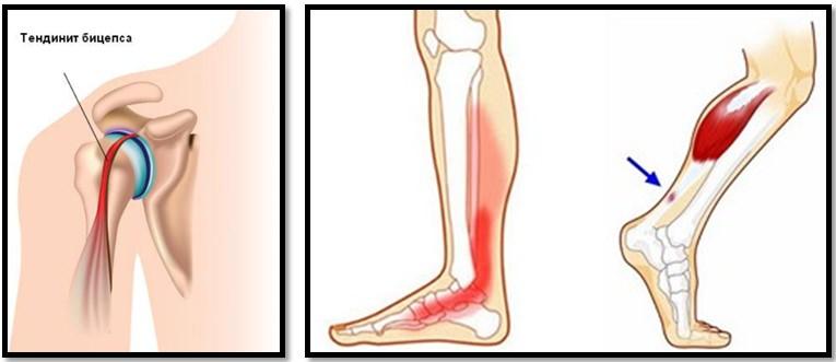inflamația cartilajelor