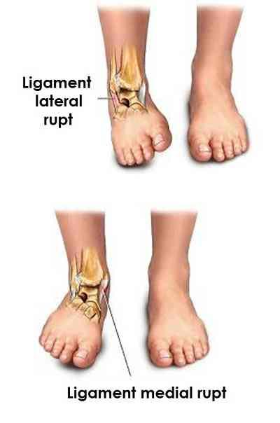 leziune a ligamentului gleznei boala articulară a extremităților inferioare