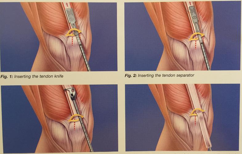 mijloace pentru întărirea articulațiilor cartilajului și ligamentelor pentru dureri în articulații gluconat de calciu