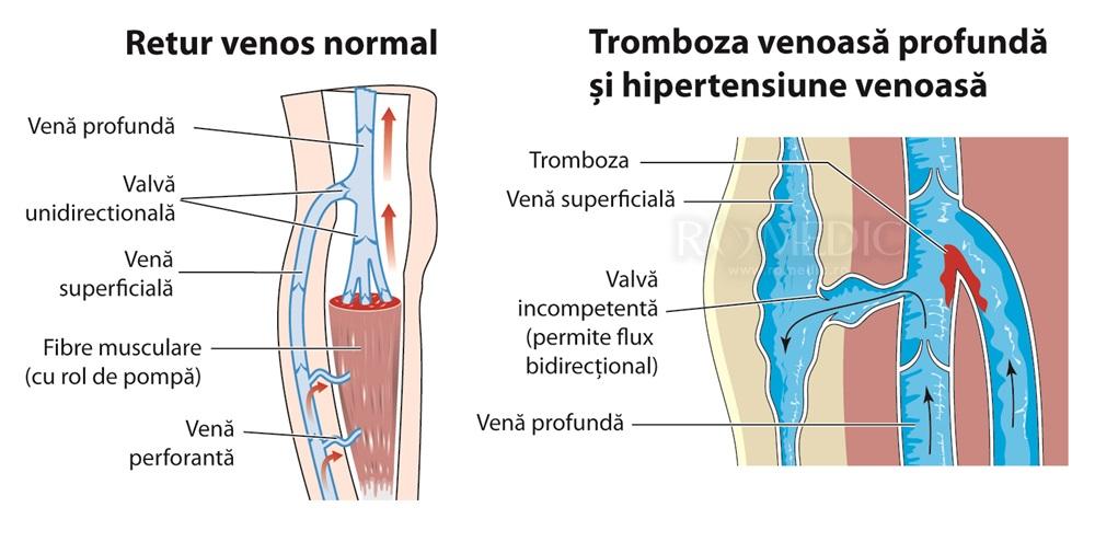 leziuni la sold durere și criză în articulația mâinii