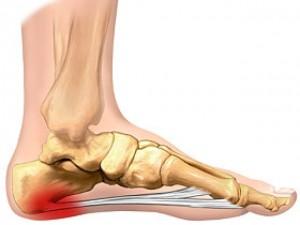 inflamația articulațiilor piciorului și gleznei)