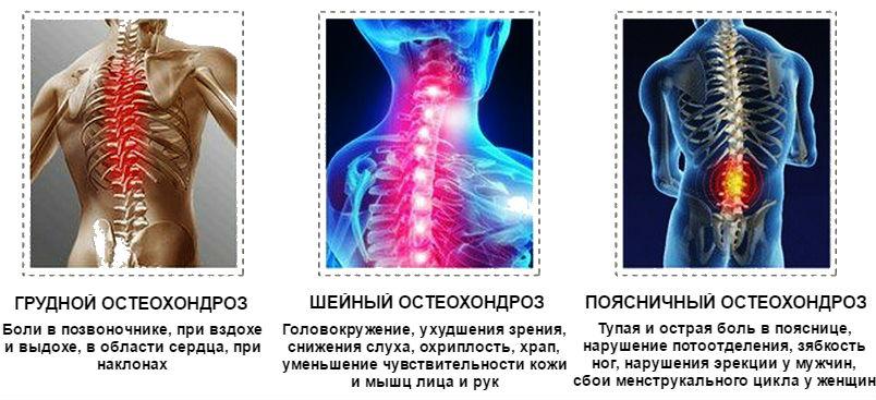 osteochondroza cervicală tratamentul cu medicamente nervoase