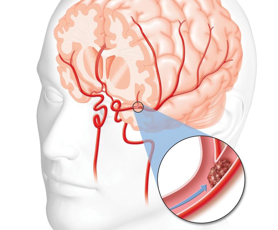 Durerea postaccident vascular cerebral