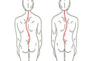 curbura deformării coloanei vertebrale a osteochondrozei)
