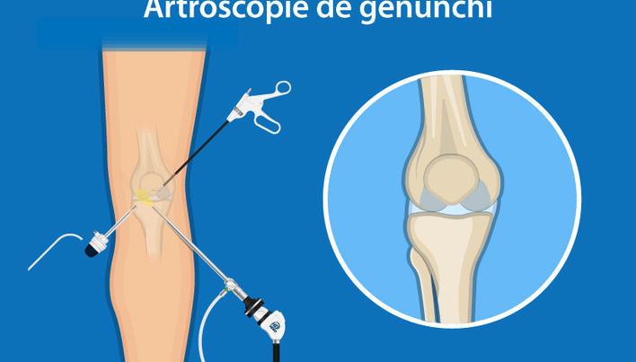 Artrita la severă genunchi cum