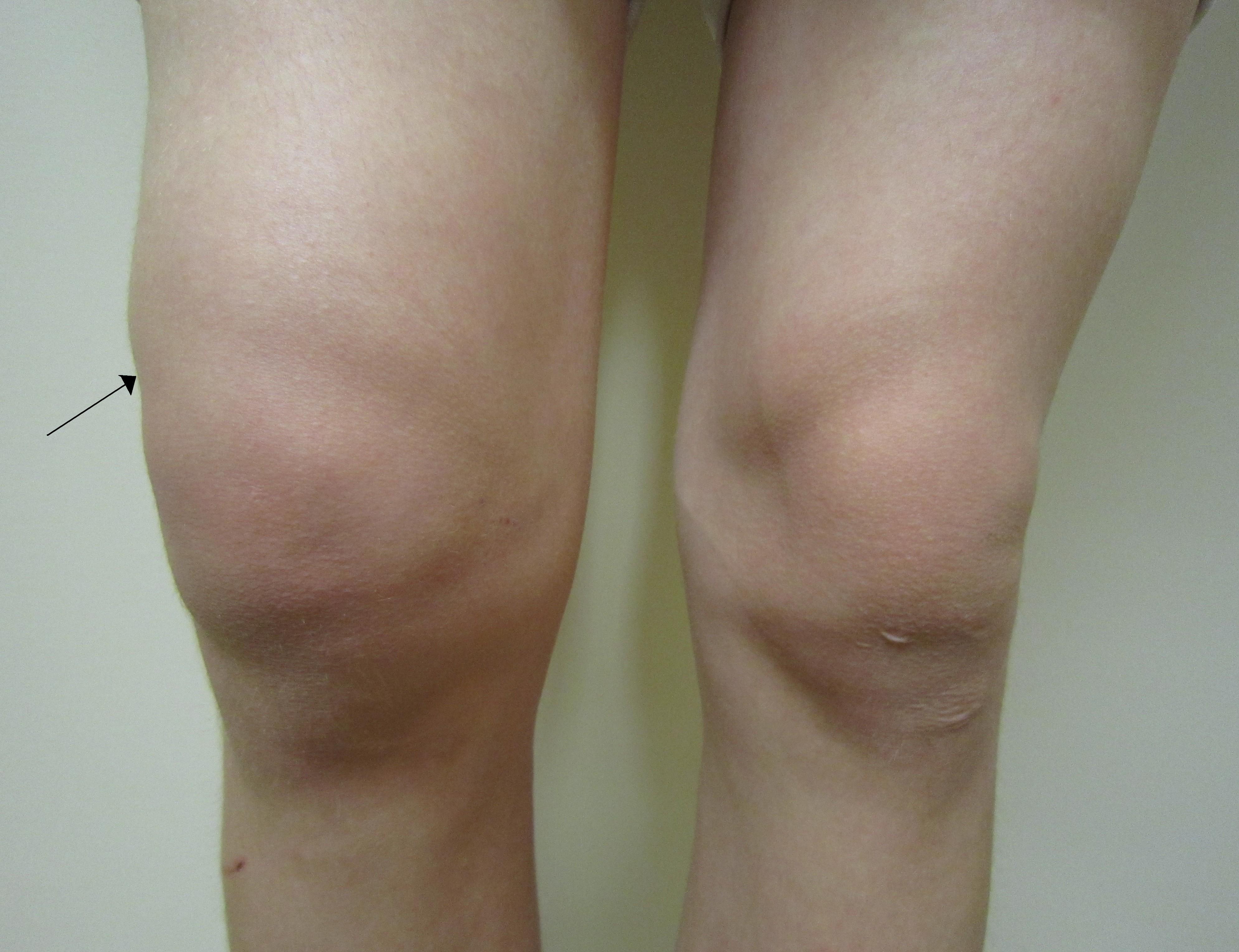 revărsat în inversarea superioară a tratamentului articulației genunchiului
