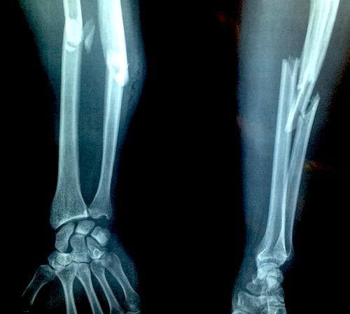 articulațiile doare cu un picior rupt