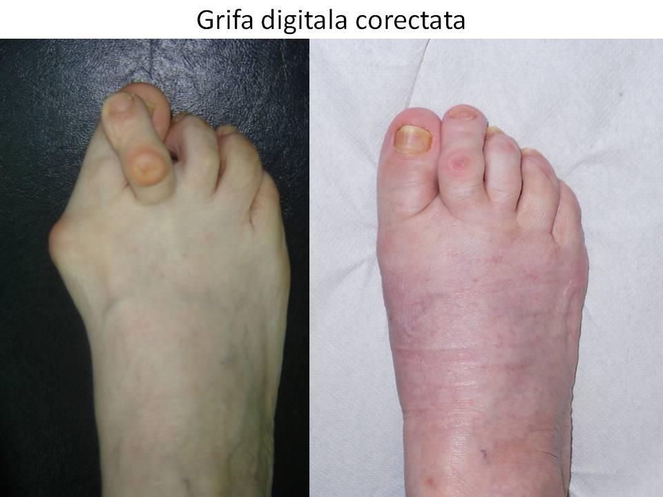 tratamentul cornurilor pe articulațiile degetelor de la picioare
