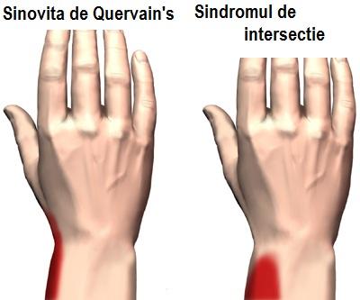 inflamația nervilor la încheietura mâinii)